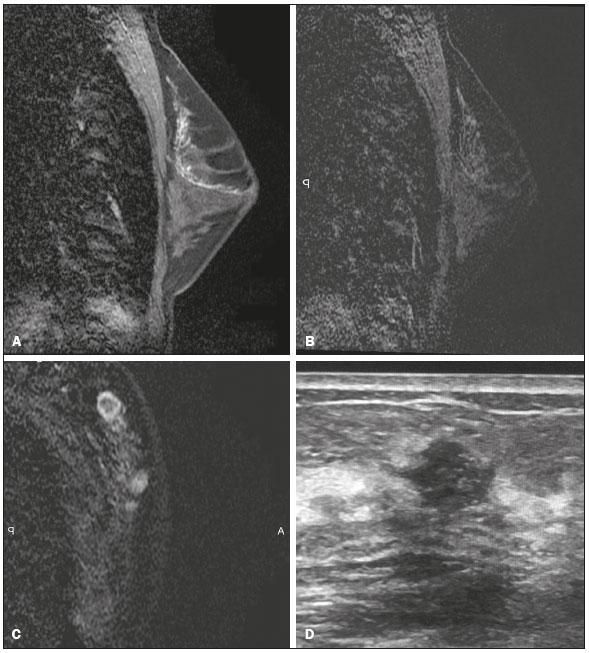 Radiologia Brasileira - Avaliação imaginológica da paciente