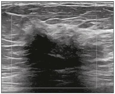 Radiologia Brasileira - Aspectos radiológicos do