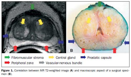 Shear Wave Elastography of Prostate Cancer