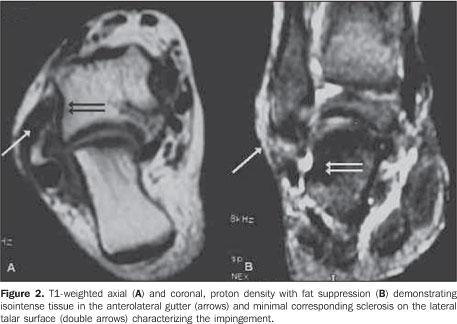 Radiologia Brasileira S 237 Ndrome Do Impacto Do Tornozelo