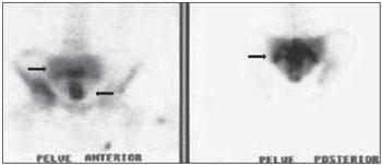 Radiologia Brasileira - Doença de Paget com acometimento
