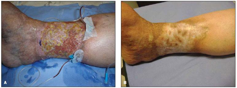 Fisiopatologia Ulcera Varicosa Pdf