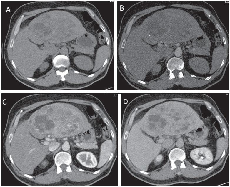 Tumor Neuroendócrino: sintomas, tratamentos e causas
