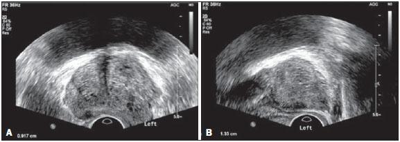 ecografia prostata adenoma)
